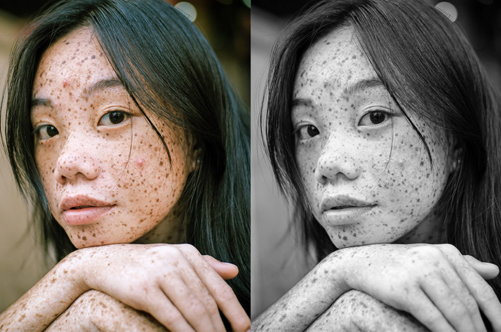 girl with acne-prone skin and freckles